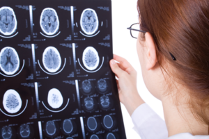 Neurofeedback for Brain Injury